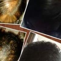 hairgrowing tonic forsale